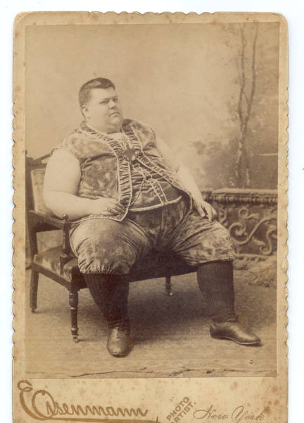Freak Show Obesity 100 Years Ago
