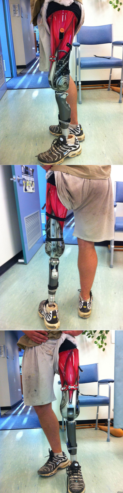 The Coolest Prosthetic Leg Ever