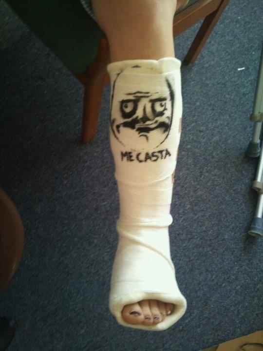 Me Gusta Broken Ankle