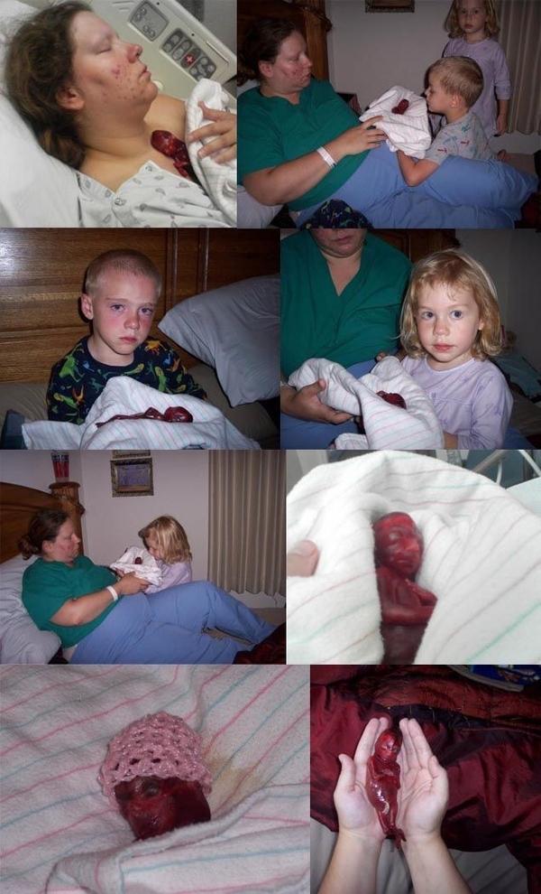 Stillbirth (NSFW)