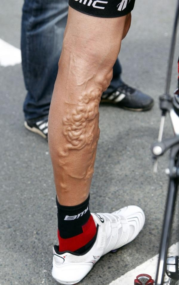 What Riding The Tour De France Does To Your Legs