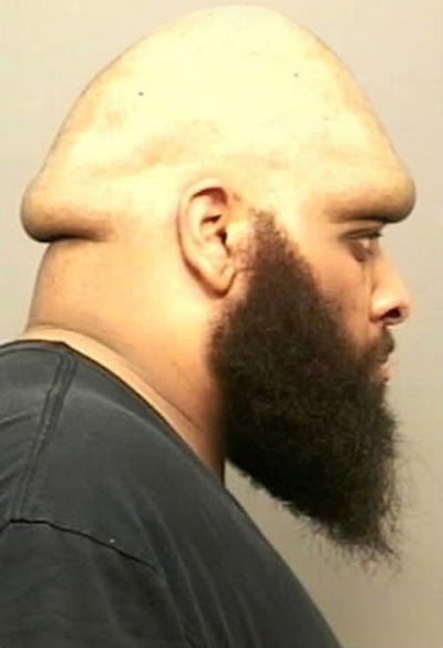 Sir, Your Head Is Shaped Like a Penis