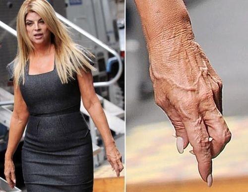 Kirstie Alley's Hand