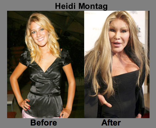 Heidi Montag Before And After Surgery