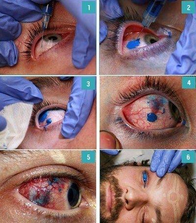 Dye Your Eyeballs!