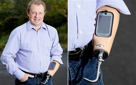 British Man Has Smart Phone Built Into His Arm