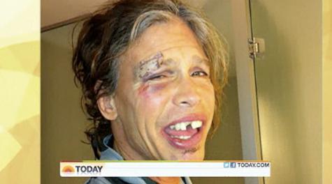 Steven Tyler's New Face