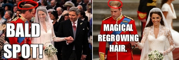 Prince William's Disappearing Hair