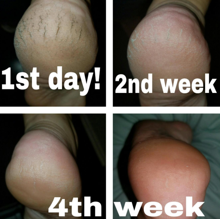 reviewer's cracked heel with drastically improved pics