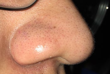blackheads on side of nose