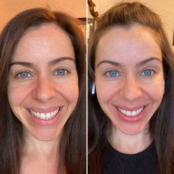 Reviewer showing results of using L'Oreal hyaluronic acid serum