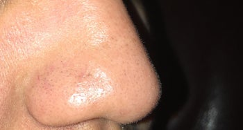 same nose without blackheads after using the pore strips