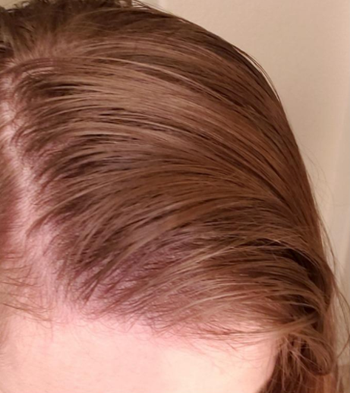before image of reviewer's hair showing greasiness
