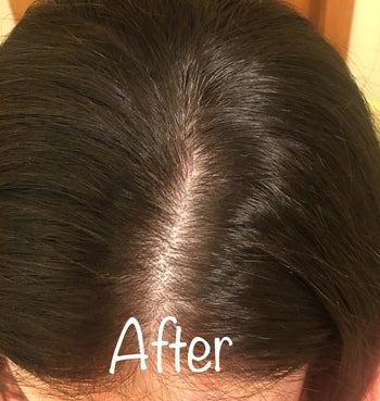 after image of the same reviewer with a clean and clear scalp