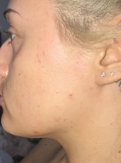reviewer's face with peach fuzz removed and skin looking smoother