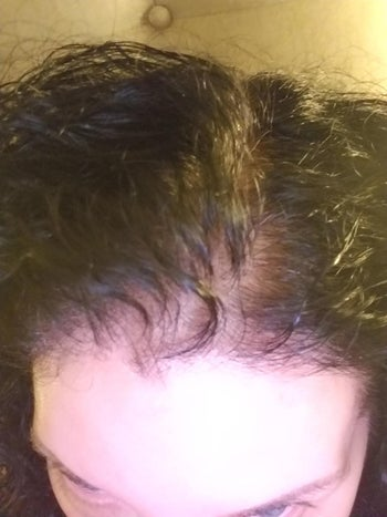 reviewer with thinning hair