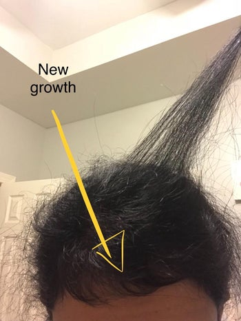reviewer showing new hair growth