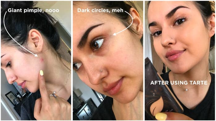 before/after image of writer Kayla Suazo showing how the foundation covers up pimples and dark circles