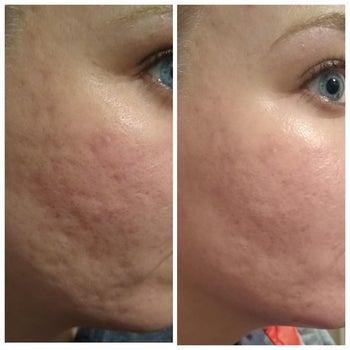 Reviewer showing results of using Roc retinol cream