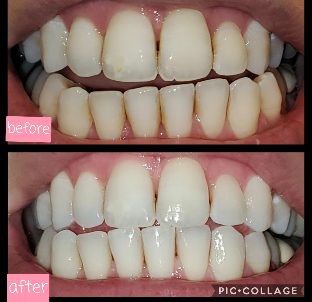 a split image of a reviewer's teeth before and after using the whitening pen