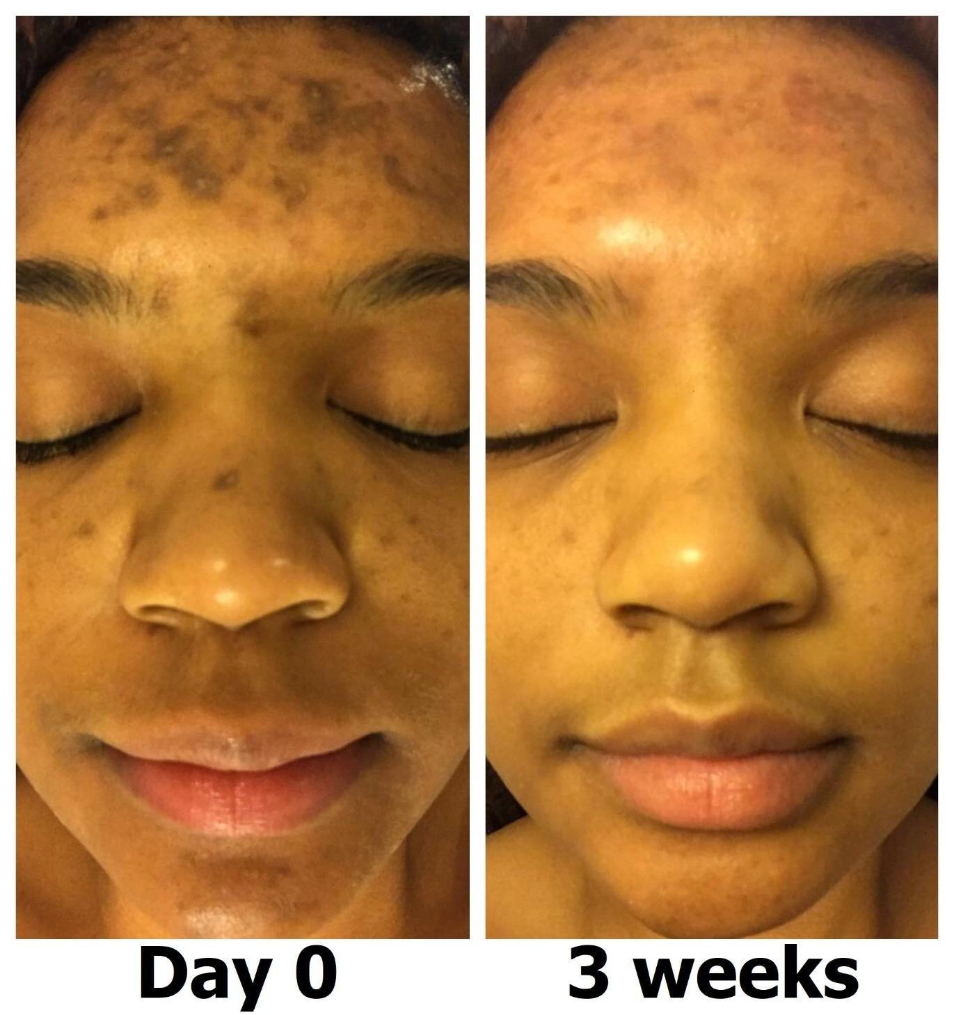 on left, dark spots on forehead. on right, same forehead with less dark spots