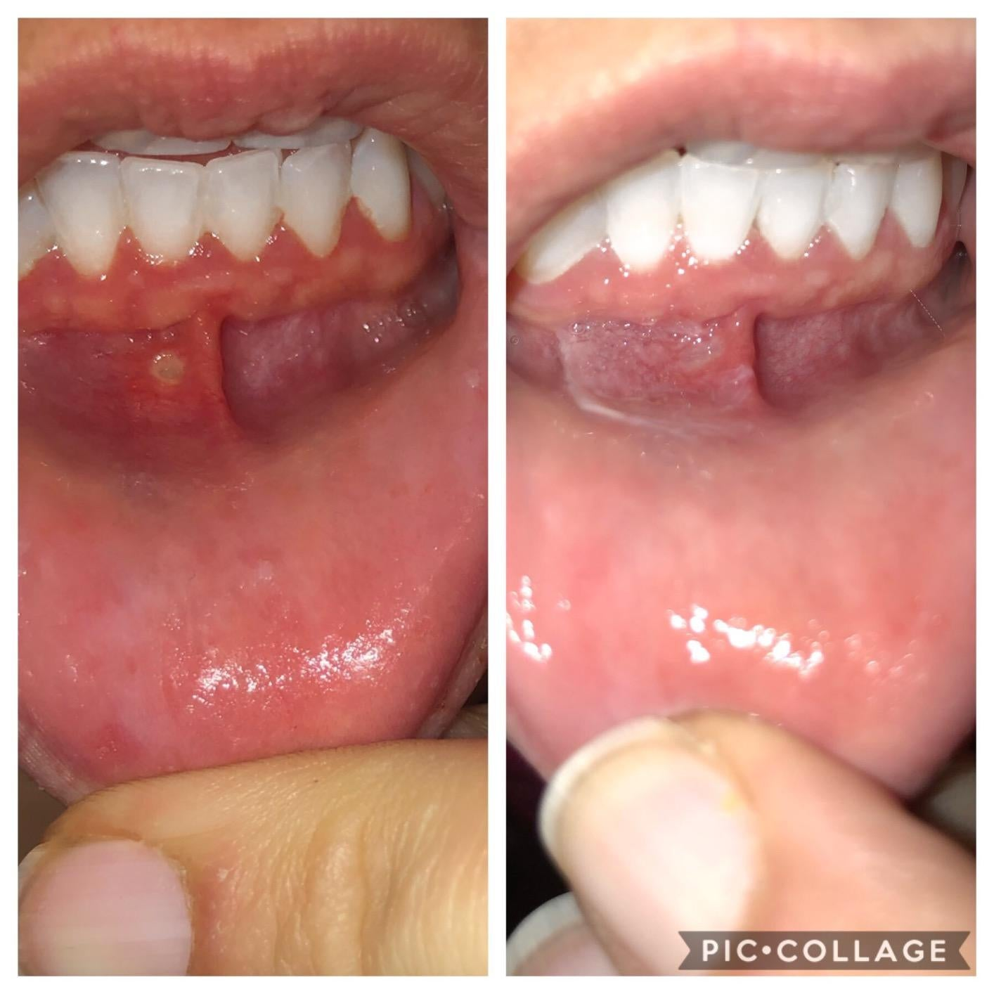 reviewer showing their canker sore and then the sore gone