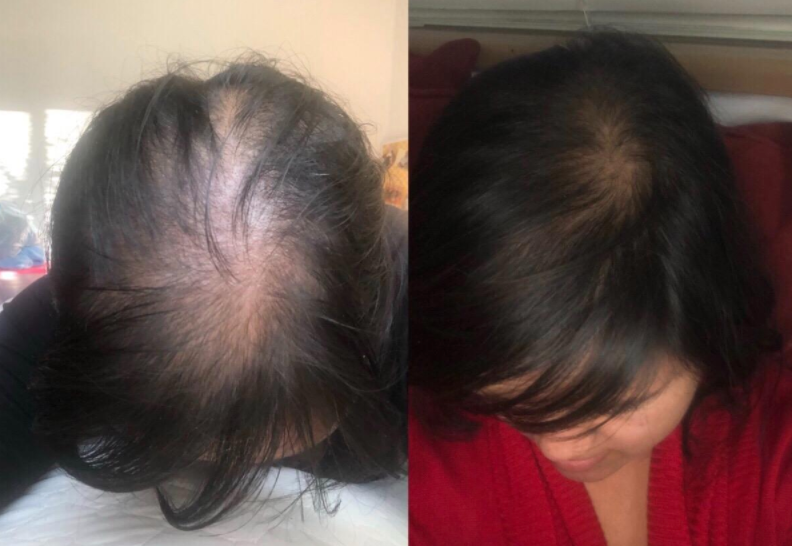 reviewer with lots of hair loss on top of scalp, then same reviewer with hair grown back in from using the shampoo