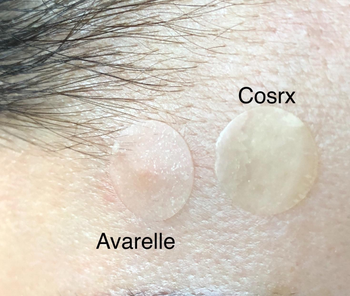 avarell and cosrx patches on a reviewer's face, the avarelle patch is more transparent