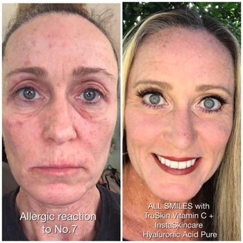 before photo of a reviewer with  redness and dark under-eye circles next to an after photo of the same reviewer whose skin looks glowy, tighter, and radiant after using the vitamin c serum