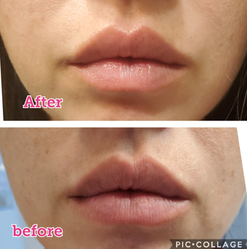 reviewers lips before, looking rough, and after, looking much smoother