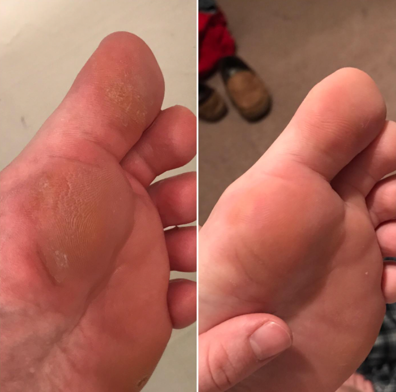 reviewer's bottom of foot with calluses, then after without the calluses