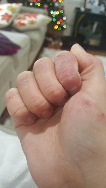 the same reviewer's hand, which now looks moisturized, less red, less cracked, and less angry