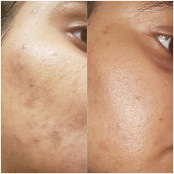 Reviewer showing results of using CeraVe vitamin C serum